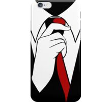 Expect Us iPhone Case/Skin