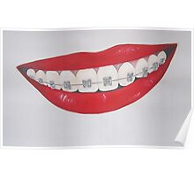 lips and retainers Poster