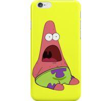 Patrick iPhone Case/Skin