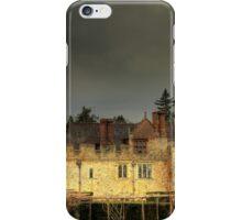 Hever Castle iPhone Case/Skin