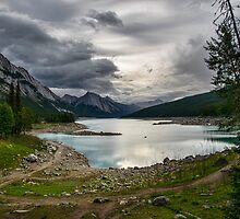 Medicine Lake  by Chris  Randall