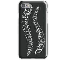Vertebrae on Black iPhone Case/Skin
