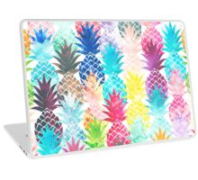 Hawaiian Pineapple Pattern Tropical Watercolor Laptop Skin