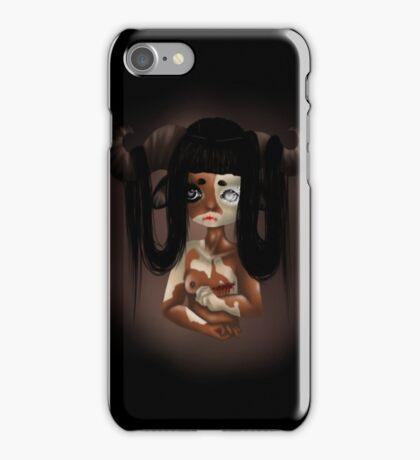 Vitiligo Minotaur iPhone Case/Skin