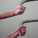 overcoming parkinsons by Marike Kleynscheldt