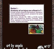 A_i-Anatomy of an Injury_cover_artbyangela by artbyangela