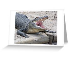 Open Wide! Greeting Card