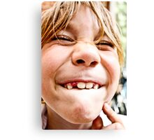 lost tooth Canvas Print