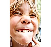 lost tooth Photographic Print