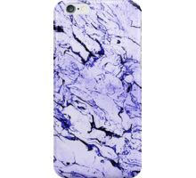 Beauty in Texture iPhone Case/Skin