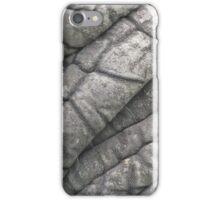 Butt Wrinkles iPhone Case/Skin