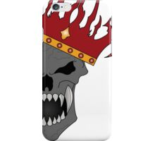 Dead King iPhone Case/Skin