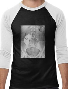 Kidney Transplant Donor Men's Baseball ¾ T-Shirt