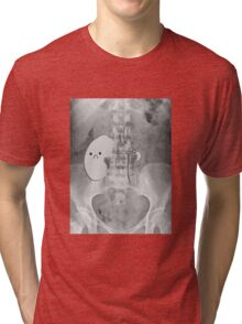 Kidney Transplant Donor Tri-blend T-Shirt