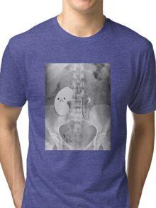 Kidney Transplant Donor Tri-blend T-Shirt