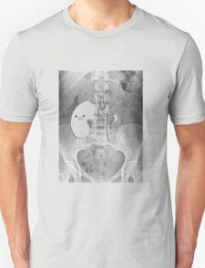 Kidney Transplant Donor T-Shirt