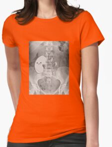 Kidney Transplant Donor Womens Fitted T-Shirt