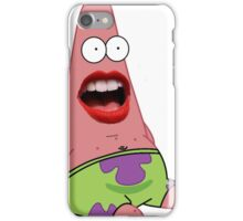 Patrick Is Shocked iPhone Case/Skin
