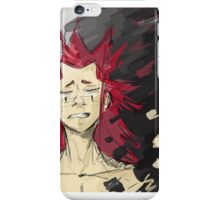 Fading is Painful  iPhone Case/Skin