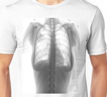 cold lung Unisex T-Shirt