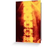Radiograph - Spine Greeting Card