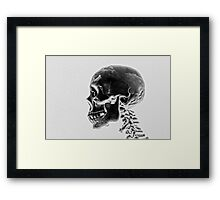 X-Ray Skull Framed Print