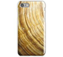 can you guess what this is? iPhone Case/Skin