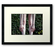 ragged limbs Framed Print