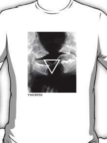VNDERFIFTY X RAY T-Shirt