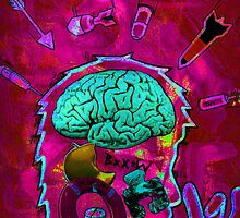 brain attack by Andrew Hennig