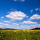 Dandelions and Clouds by Jeannette Sheehy
