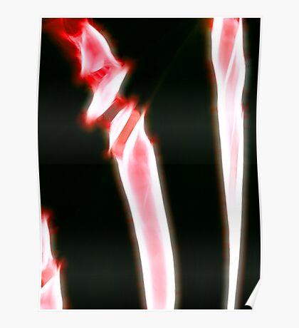 raw bones Poster