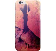 Lungs iPhone Case/Skin