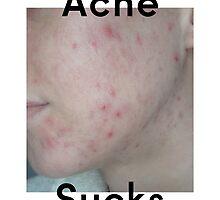 Acne Sucks v1 by secretshop