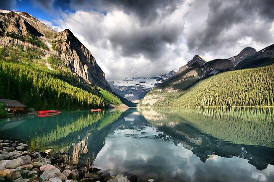 Lake Louise, Banff National Park by Teresa Zieba