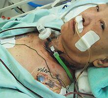 Cancer Surgery (11)、OSAKA JAPAN by yoshiaki nagashima