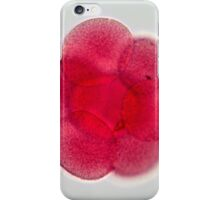 Egg cell under the microscope. iPhone Case/Skin