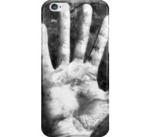 Self Portrait (Right Hand) iPhone Case/Skin