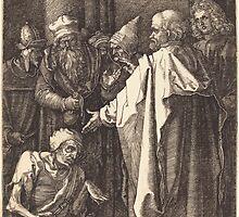 Albrecht Dürer or Durer Saint Peter and Saint John Healing a Cripple at the Gate of the Temple by wetdryvac