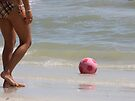 Wilson Has Sunburn by Kate Purdy