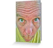 Man with bulging eyes Greeting Card