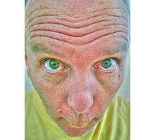 Man with bulging eyes Photographic Print