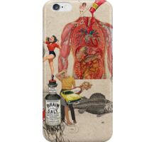 CATSUP iPhone Case/Skin
