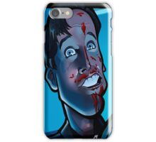 Party's Over Dead Alive iPhone Case/Skin
