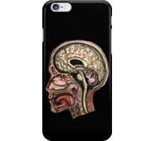 Sagittal head section iPhone Case/Skin