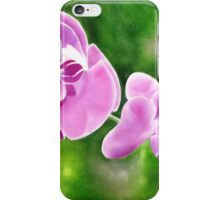 Tropical Allure - Floral artwork iPhone Case/Skin