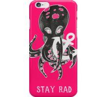 Stay Rad iPhone Case/Skin