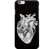 My White Heart iPhone Case/Skin