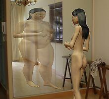 Anorexia by Mike Paget
