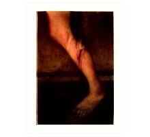 Torn Anterior Cruciate Ligament Art Print